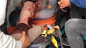 Feci kaza sonrası bacağındaki çapa makinesi ile hastaneye kaldırıldı