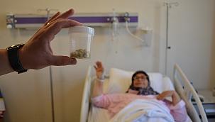 Çanakkale'de bir hastanın safra kesesinden 80 taş çıktı